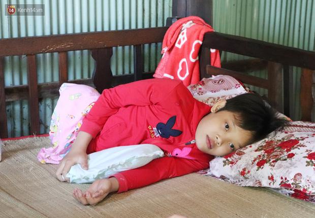 Xót cảnh bé gái 12 tuổi phải nghỉ học, cắt bỏ đôi chân sau trận sốt bại liệt: Tóc con dần rụng hết rồi-6