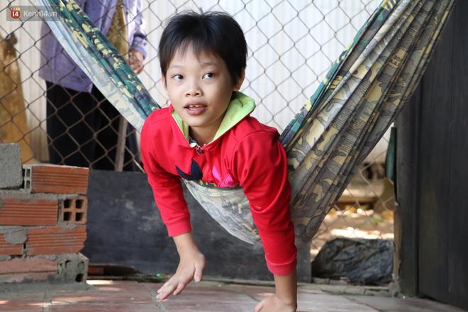 Xót cảnh bé gái 12 tuổi phải nghỉ học, cắt bỏ đôi chân sau trận sốt bại liệt: Tóc con dần rụng hết rồi-7