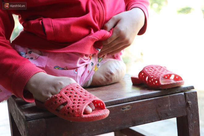 Xót cảnh bé gái 12 tuổi phải nghỉ học, cắt bỏ đôi chân sau trận sốt bại liệt: Tóc con dần rụng hết rồi-8