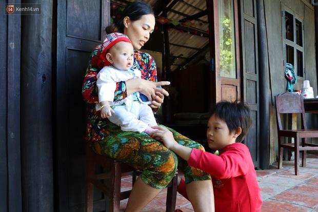 Xót cảnh bé gái 12 tuổi phải nghỉ học, cắt bỏ đôi chân sau trận sốt bại liệt: Tóc con dần rụng hết rồi-9