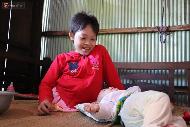 Xót cảnh bé gái 12 tuổi phải nghỉ học, cắt bỏ đôi chân sau trận sốt bại liệt: Tóc con dần rụng hết rồi-10