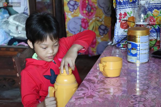 Xót cảnh bé gái 12 tuổi phải nghỉ học, cắt bỏ đôi chân sau trận sốt bại liệt: Tóc con dần rụng hết rồi-11