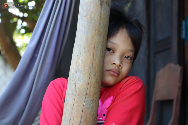 Xót cảnh bé gái 12 tuổi phải nghỉ học, cắt bỏ đôi chân sau trận sốt bại liệt: Tóc con dần rụng hết rồi-14