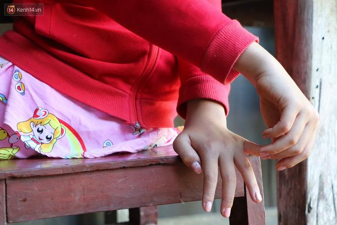 Xót cảnh bé gái 12 tuổi phải nghỉ học, cắt bỏ đôi chân sau trận sốt bại liệt: Tóc con dần rụng hết rồi-15