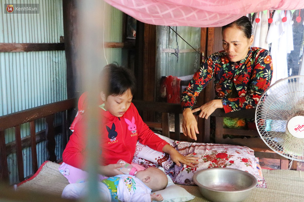 Xót cảnh bé gái 12 tuổi phải nghỉ học, cắt bỏ đôi chân sau trận sốt bại liệt: Tóc con dần rụng hết rồi-16