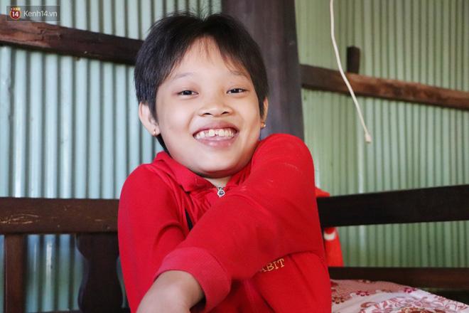 Xót cảnh bé gái 12 tuổi phải nghỉ học, cắt bỏ đôi chân sau trận sốt bại liệt: Tóc con dần rụng hết rồi-17