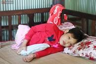 Xót cảnh bé gái 12 tuổi phải nghỉ học, cắt bỏ đôi chân sau trận sốt bại liệt: 'Tóc con dần rụng hết rồi'