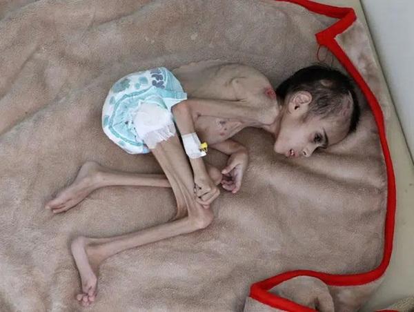 Bức ảnh cậu bé 7 tuổi nặng chưa đầy 7kg gầy giơ xương nằm co ro trên giường gây sốc, câu chuyện phía sau càng khiến nhiều người xót xa-1