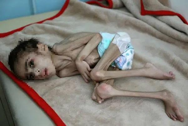 Bức ảnh cậu bé 7 tuổi nặng chưa đầy 7kg gầy giơ xương nằm co ro trên giường gây sốc, câu chuyện phía sau càng khiến nhiều người xót xa-2
