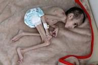 Bức ảnh cậu bé 7 tuổi nặng chưa đầy 7kg gầy giơ xương nằm co ro trên giường gây sốc, câu chuyện phía sau càng khiến nhiều người xót xa