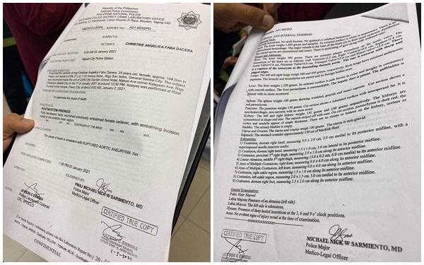 Người đàn ông tự nhận đã hôn nữ tiếp viên hàng không Philippines lên tiếng khẳng định không vào phòng cùng nạn nhân-3