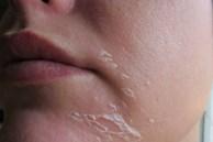 Mùa đông có ai không bị khô da: Chuyên gia da liễu tiết lộ 5 nguyên nhân, 5 dấu hiệu, 6 giải pháp chặn đứng thủ phạm làm da khô ráp, xù xì