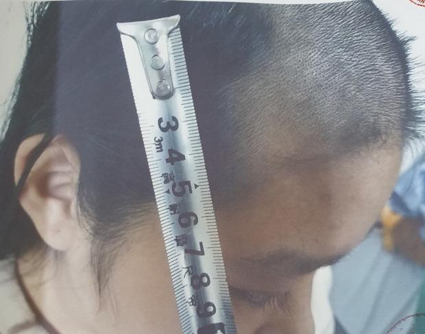 Bắc Ninh: Cha làm sẵn roi đánh đập con đẻ 5 tuổi đến ngất lịm, hành hạ bé suốt thời gian dài sau mỗi lần sử dụng ma tuý-1
