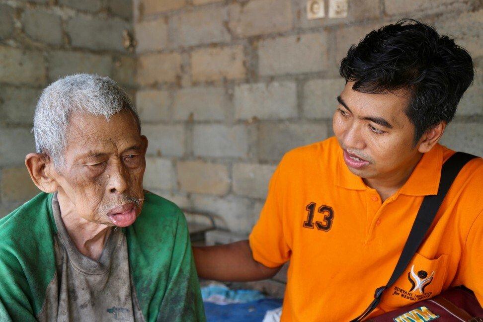 Có một địa ngục ở giữa thiên đường du lịch Bali: Nơi bệnh nhân tâm thần đang bị xiềng xích bởi tục lệ truyền thống man rợ-1