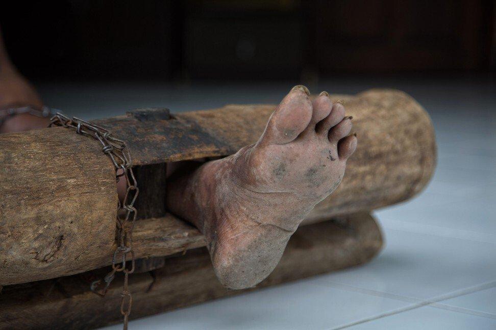 Có một địa ngục ở giữa thiên đường du lịch Bali: Nơi bệnh nhân tâm thần đang bị xiềng xích bởi tục lệ truyền thống man rợ-3
