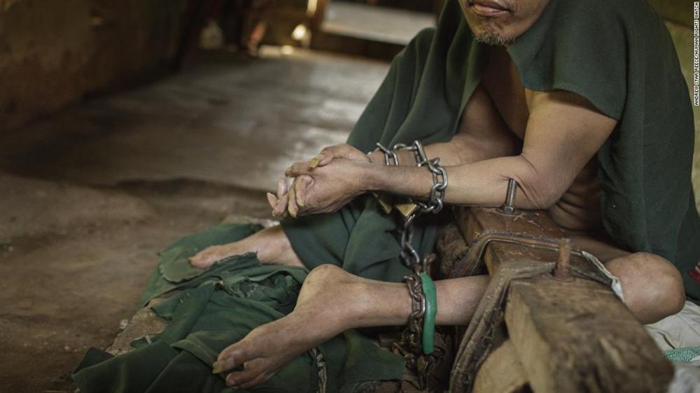 Có một địa ngục ở giữa thiên đường du lịch Bali: Nơi bệnh nhân tâm thần đang bị xiềng xích bởi tục lệ truyền thống man rợ-5