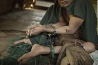 Có một 'địa ngục' ở giữa thiên đường du lịch Bali: Nơi bệnh nhân tâm thần đang bị xiềng xích bởi tục lệ truyền thống man rợ