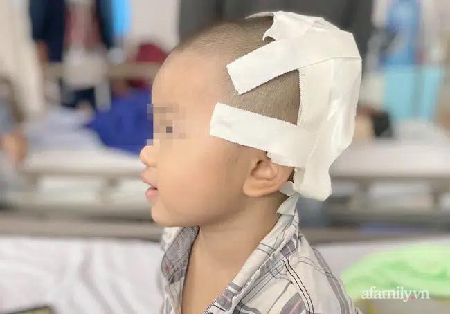 Tai nạn kinh hoàng: Anh lấy xe đạp chở em út quanh xóm rồi bị té, bé trai 2 tuổi lõm sọ não-1