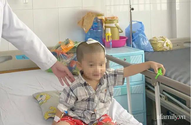 Tai nạn kinh hoàng: Anh lấy xe đạp chở em út quanh xóm rồi bị té, bé trai 2 tuổi lõm sọ não-3