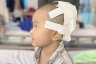 Tai nạn kinh hoàng: Anh lấy xe đạp chở em út quanh xóm rồi bị té, bé trai 2 tuổi lõm sọ não