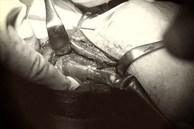 Nguy hiểm: Phát hiện vi khuẩn kháng nhiều loại kháng sinh trong ổ áp xe giáp
