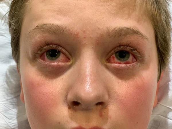 Hình ảnh cậu bé 11 tuổi mắt chuyển màu đỏ máu đáng sợ nhưng chân lại có màu xanh do mắc Covid-19 gây lo ngại-1