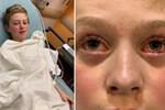 Hình ảnh cậu bé 11 tuổi mắt chuyển màu đỏ máu đáng sợ nhưng chân lại có màu xanh do mắc Covid-19 gây lo ngại