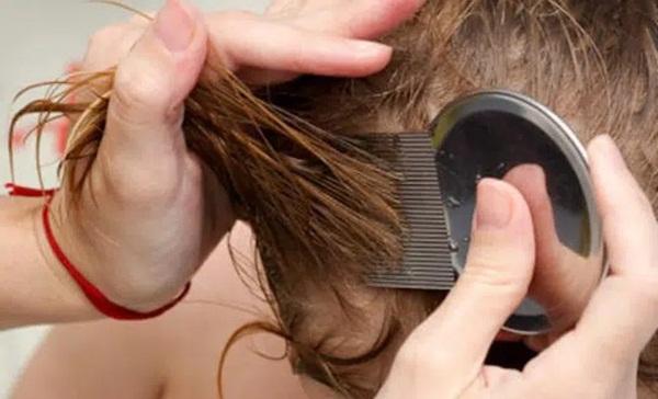 Rùng mình xem cảnh chải đầu của bé gái nhiều chấy chưa từng có, hàng nghìn con chấy lúc nhúc chui ra khỏi tóc chỉ sau 1 lần đưa lược-3