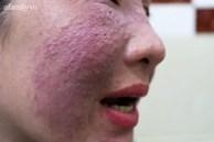 Dùng chai 'thảo dược thiên nhiên' làm đẹp cấp tốc ăn Tết, mặt người phụ nữ 40 tuổi bỏng rát và biến dạng nặng nề