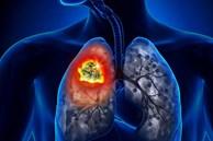 Cảnh giác với 5 loại ung thư cha mẹ có thể di truyền cho con cái
