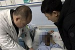 Đau vùng kín nhưng ngại nói với cha mẹ, cậu bé 14 tuổi phải cắt bỏ tinh hoàn