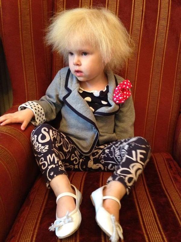 Bé gái sở hữu mái tóc kì lạ khiến mẹ khổ sở vì không thể chải theo ý muốn, diện mạo khi lớn lên ai cũng bất ngờ-1