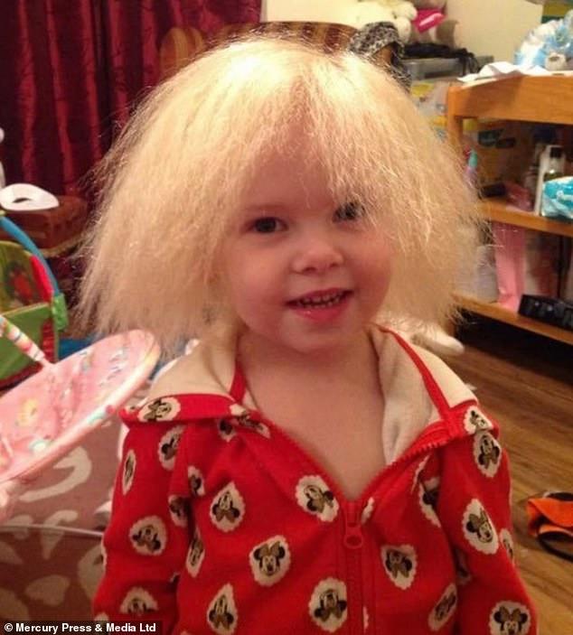 Bé gái sở hữu mái tóc kì lạ khiến mẹ khổ sở vì không thể chải theo ý muốn, diện mạo khi lớn lên ai cũng bất ngờ-4