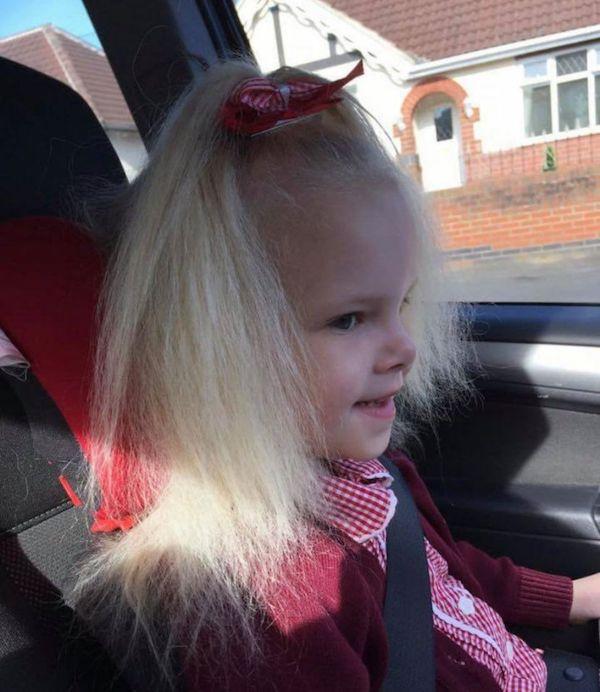 Bé gái sở hữu mái tóc kì lạ khiến mẹ khổ sở vì không thể chải theo ý muốn, diện mạo khi lớn lên ai cũng bất ngờ-7