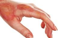 Hướng dẫn kỹ năng sơ cứu cực dễ nếu chẳng may bị bỏng khi đang nấu nướng dịp Tết
