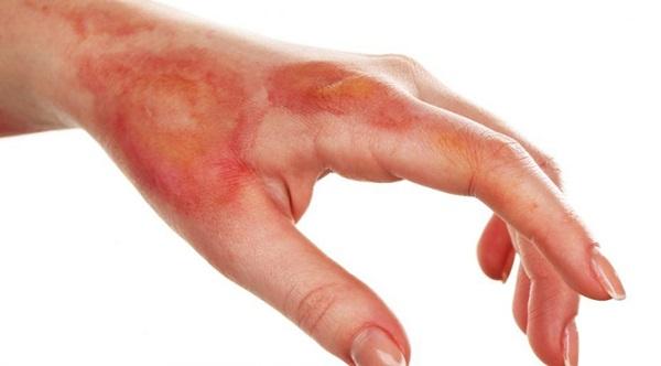 Hướng dẫn kỹ năng sơ cứu cực dễ nếu chẳng may bị bỏng khi đang nấu nướng dịp Tết-1