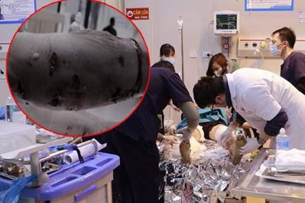 Kinh hoàng: Chó Pitbull nặng 40kg