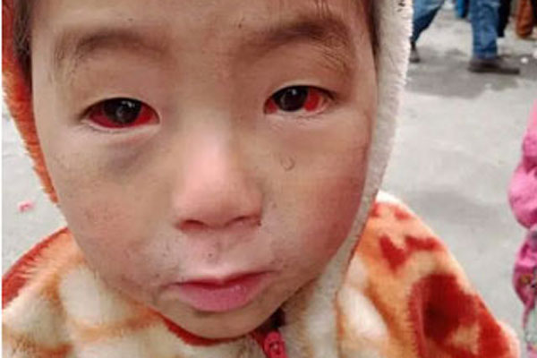 Tấm ảnh cháu bé miền núi bị xuất huyết dưới kết mạc: BS nói về nguyên nhân