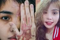 Bất ngờ ngoại hình cô gái Đà Nẵng bị chồng sắp cưới tạt axit, hủy nửa mặt