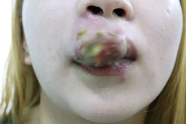 Xăm môi giá 2 triệu đồng đón Tết, cô gái 27 tuổi sưng phù miệng kinh hoàng