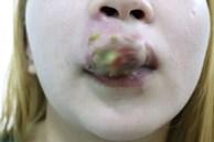 Xăm môi giá 2 triệu đồng đón Tết, cô gái 27 tuổi sưng phù miệng kinh hoàng, chảy mủ nặng nề