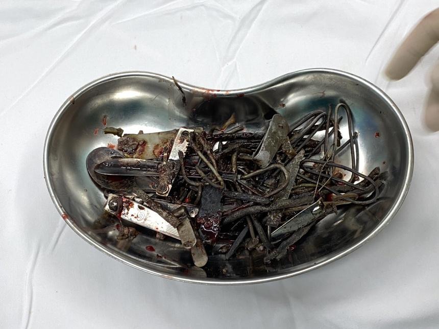 Ăn kim loại, loét da toàn thân và những căn bệnh lạ ở Việt Nam-1