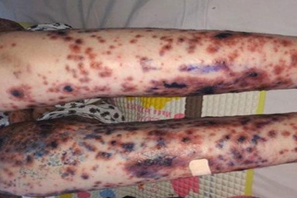 Ăn kim loại, loét da toàn thân và những căn bệnh lạ ở Việt Nam