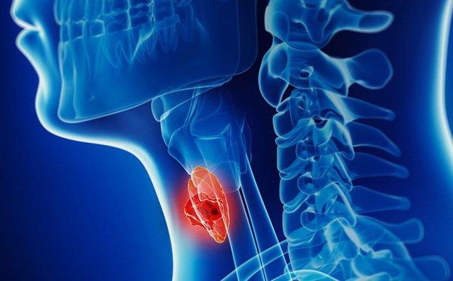 Nghệ sĩ Giang còi mắc ung thư hạ họng, đã di căn: Dấu hiệu bệnh rất khó phát hiện và dễ nhầm lẫn-3