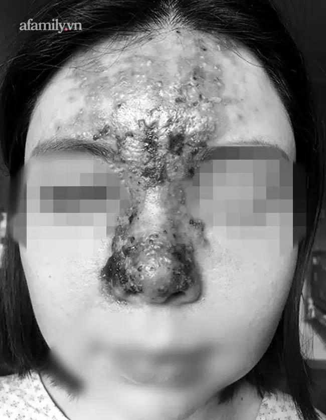 Nâng mũi bằng filler tại một spa ở TP.HCM, cô gái 24 tuổi giảm thị lực, mặt sưng tấy chảy dịch khủng khiếp-1
