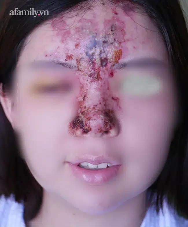 Nâng mũi bằng filler tại một spa ở TP.HCM, cô gái 24 tuổi giảm thị lực, mặt sưng tấy chảy dịch khủng khiếp-3