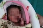 Bé gái 2 tháng tuổi bị cha tạt axit vì không phải là con trai, tưởng không sống được bao lâu nào ngờ 26 năm sau có cuộc đời đáng kinh ngạc