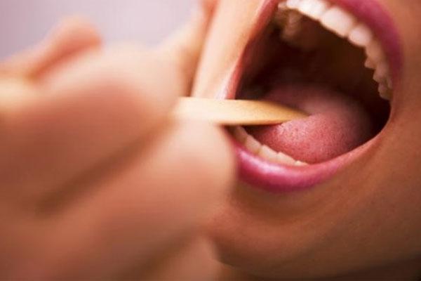 Dấu hiệu ở lưỡi cảnh báo bệnh ung thư