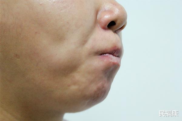 Bỗng thấy miệng xuất hiện 3 điều lạ nghĩa là ung thư đã hình thành, bạn nên đi khám khẩn cấp-2