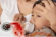 Bé trai 23 tháng tuổi bỗng bị ho và nôn ra máu rồi tử vong, bố mẹ bàng hoàng khi nghe kết quả khám nghiệm tử thi